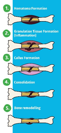 5 stages bone fracture healing